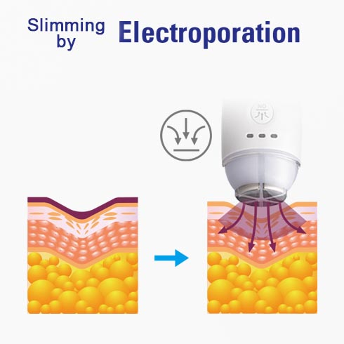 FATriot 180 Slimming by Electroporation